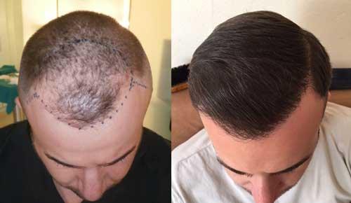 Bergmann Kord: αποτελεσματα μεταμοσχευσης μαλλιων