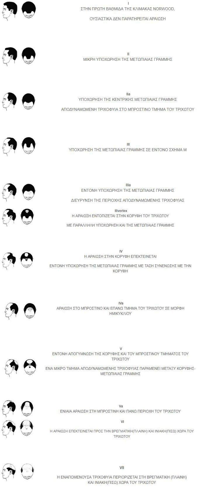 Ανδρική Τριχόπτωση - 2