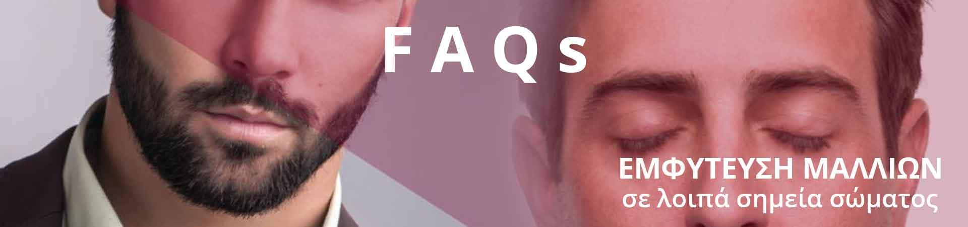 FAQs – Εμφυτευση Τριχων