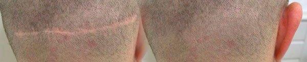 Μεταμόσχευση Μαλλιών - Διορθωτικές Επεμβάσεις - 1