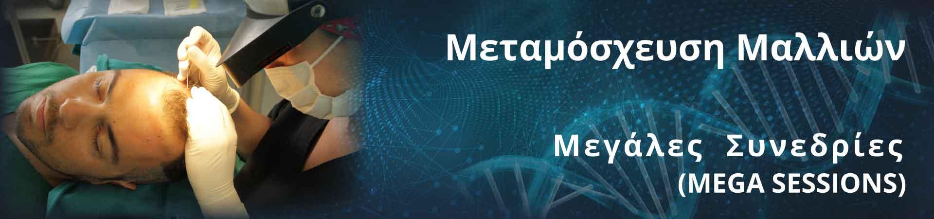 Μεταμοσχευση Μαλλιων – Mega Sessions