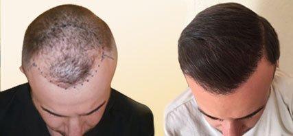 Μεταμόσχευση Μαλλιών - Αποτελέσματα