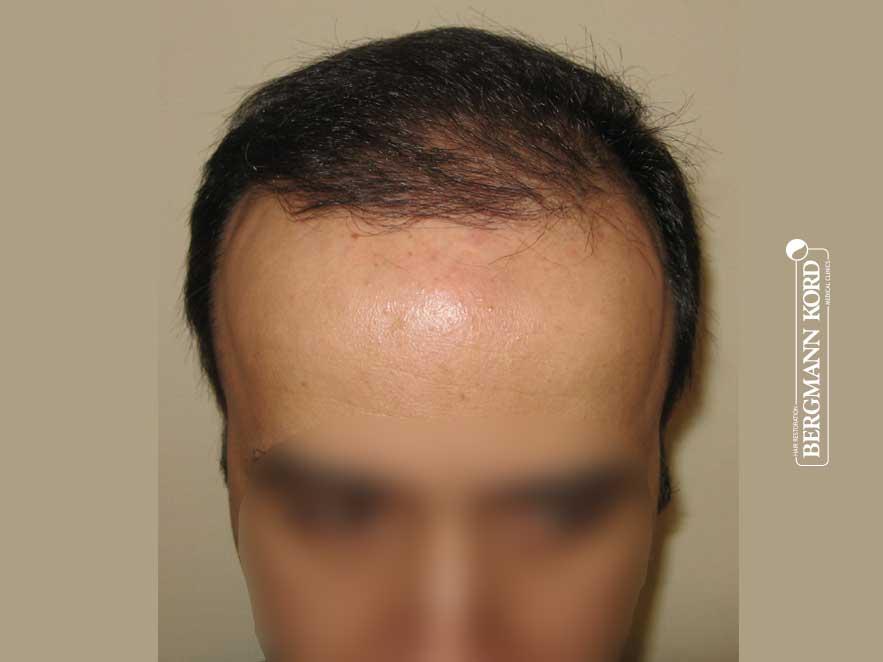 Αποτέλεσμα Μεταμόσχευσης Μαλλιών   Περιστατικό 00036-2