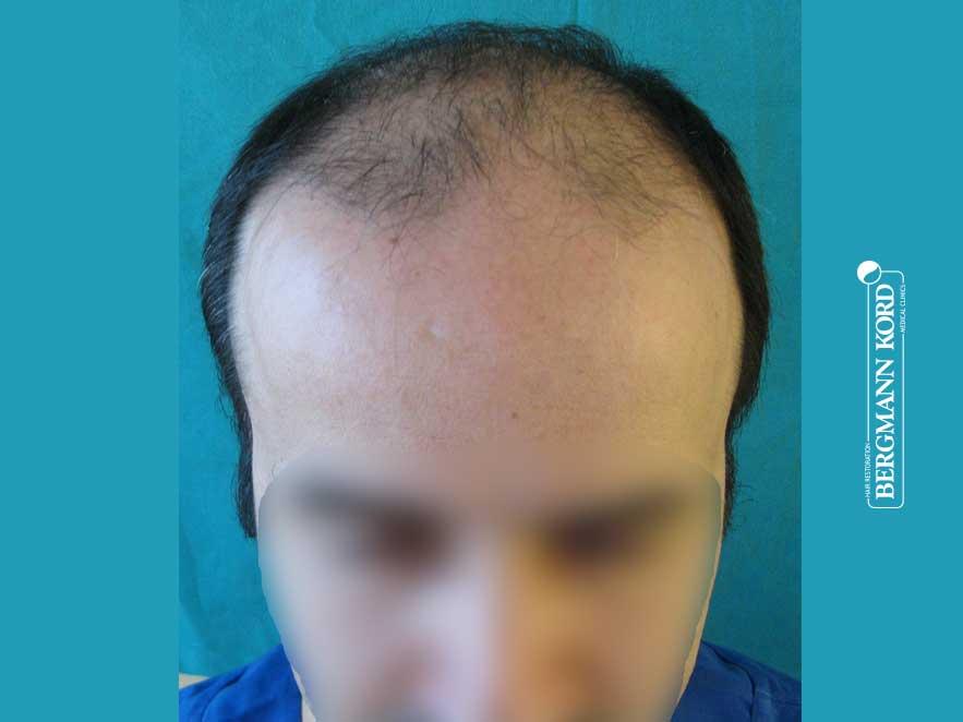 Αποτέλεσμα Μεταμόσχευσης Μαλλιών   Περιστατικό 00036-1