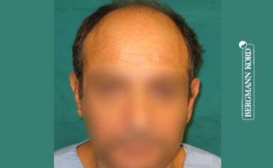 Αποτέλεσμα Μεταμόσχευσης Μαλλιών   Περιστατικό 00040-1