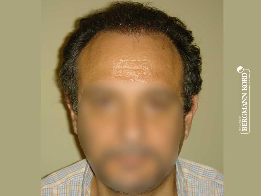 Αποτέλεσμα Μεταμόσχευσης Μαλλιών | Περιστατικό 00040-2