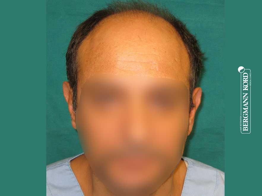 Αποτέλεσμα Μεταμόσχευσης Μαλλιών | Περιστατικό 00040-3