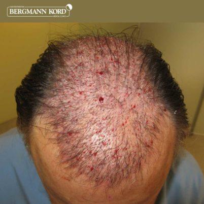 metamosxefsi-malliwn-apotelesmata-FUT-49021TL-after-the-surgery-front