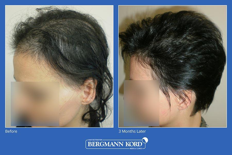 metamosxefsi-malliwn-bergmann-kord-aap-therapeia-trixoptosis-photoslider01-006