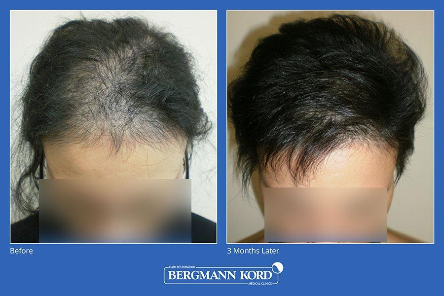 metamosxefsi-malliwn-bergmann-kord-aap-therapeia-trixoptosis-photoslider01-007