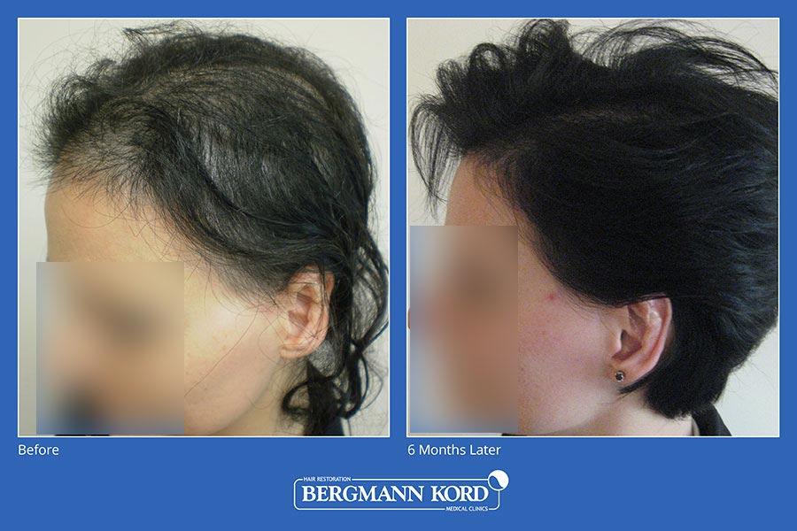 metamosxefsi-malliwn-bergmann-kord-aap-therapeia-trixoptosis-photoslider01-009