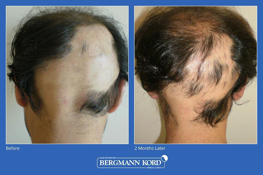 metamosxefsi-malliwn-bergmann-kord-aap-therapeia-trixoptosis-photoslider01-012
