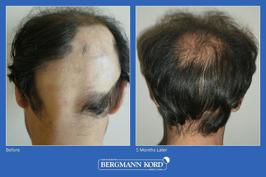 metamosxefsi-malliwn-bergmann-kord-aap-therapeia-trixoptosis-photoslider01-013