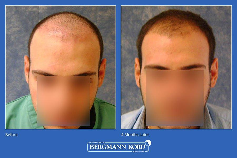 metamosxefsi-malliwn-bergmann-kord-aap-therapeia-trixoptosis-photoslider01-016
