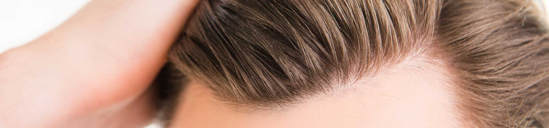 Andere Ursachen von Haarausfall