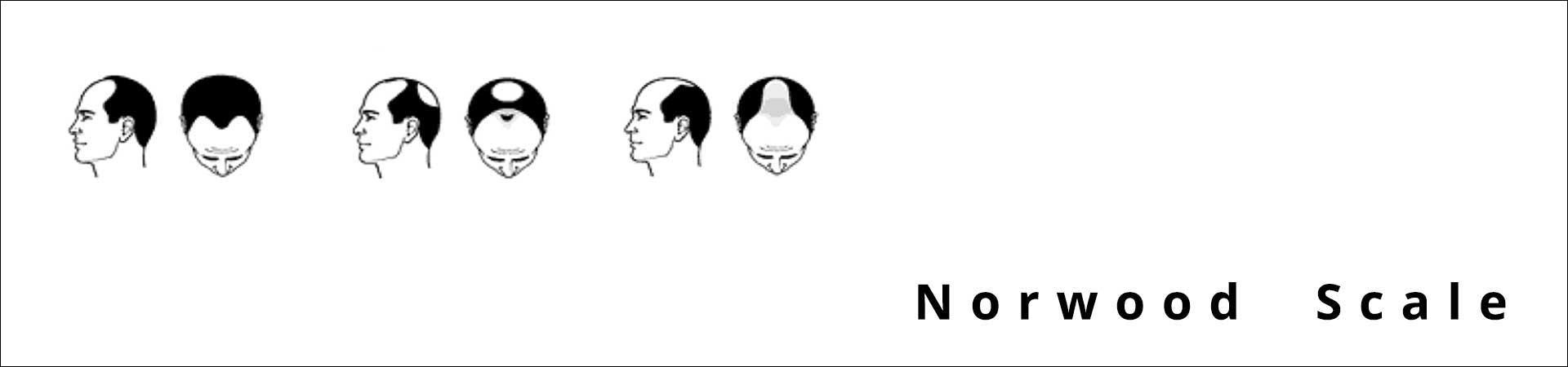 Androgenetische Alopezie und Ursachen