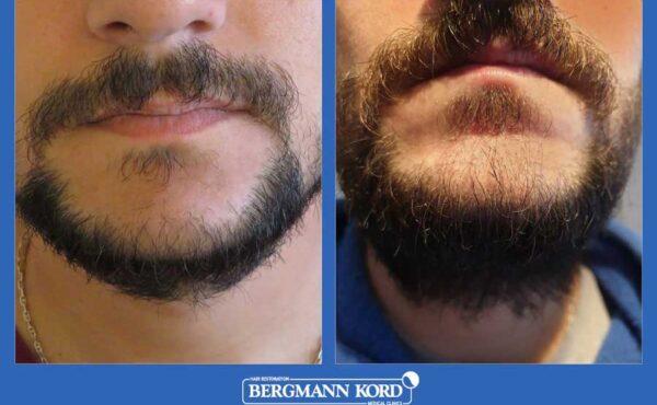 hair-implantation-bergmann-kord-results-men-17561PG-before-after-001