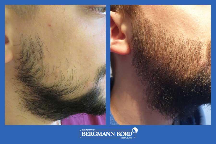 hair-implantation-bergmann-kord-results-men-17561PG-before-after-002