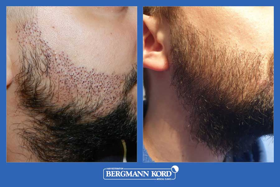 hair-implantation-bergmann-kord-results-men-17561PG-before-after-005