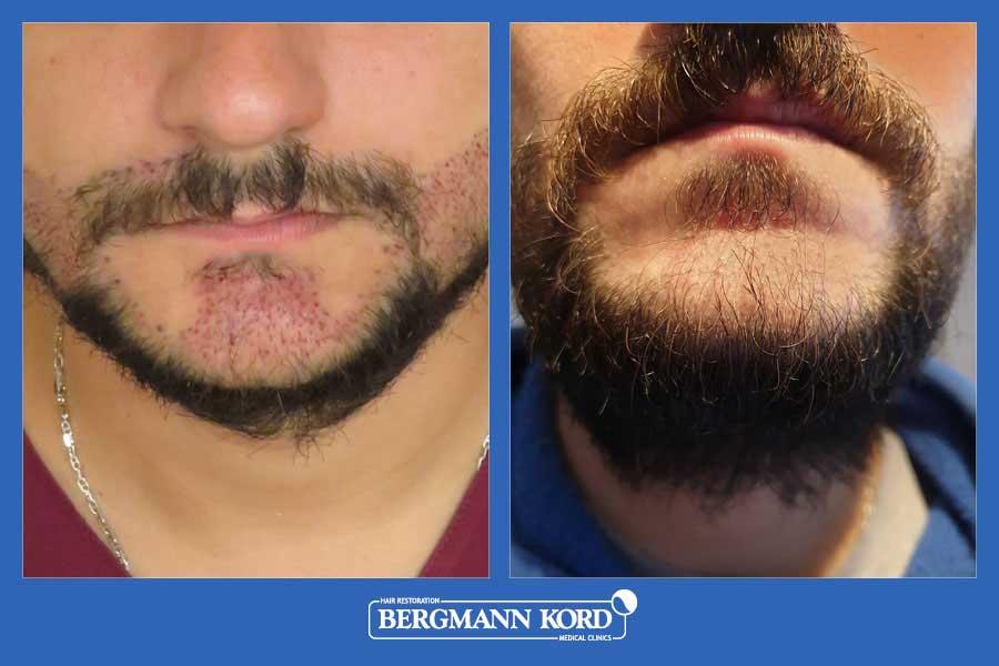 hair-implantation-bergmann-kord-results-men-17561PG-before-after-006