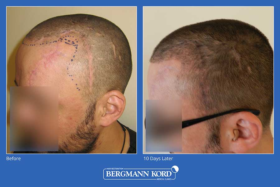 hair-implantation-bergmann-kord-results-men-45100PG-before-after-001