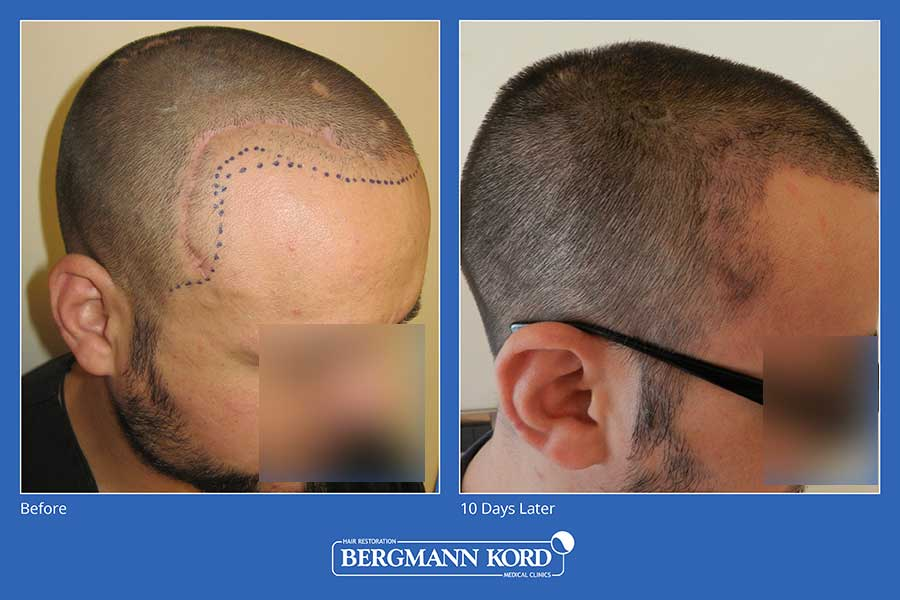 hair-implantation-bergmann-kord-results-men-45100PG-before-after-002