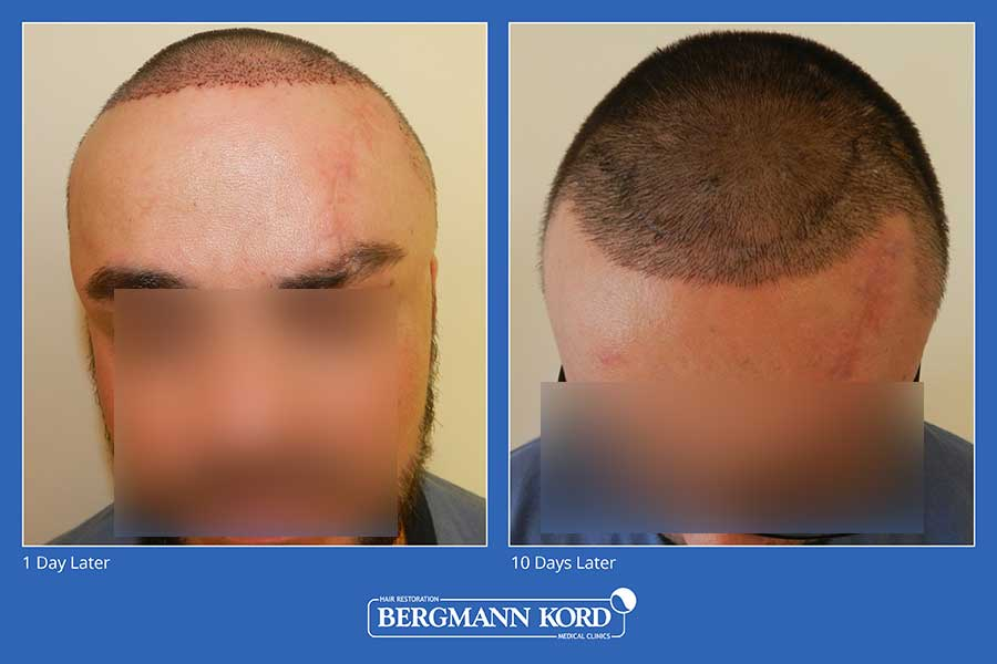 hair-implantation-bergmann-kord-results-men-45100PG-before-after-005