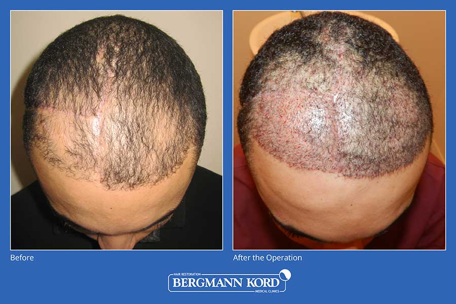 hair-implantation-bergmann-kord-results-men-45101PG-before-after-003