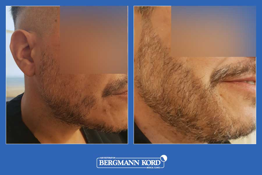 hair-transplantation-bergmann-kord-hair-clinics-beard-implantation-photo-slider-01-001
