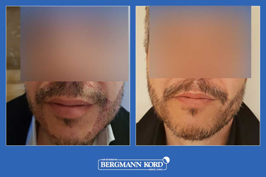 hair-transplantation-bergmann-kord-hair-clinics-beard-implantation-photo-slider-01-004