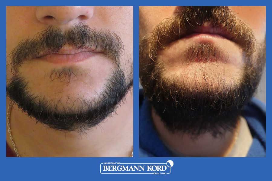 hair-transplantation-bergmann-kord-hair-clinics-beard-implantation-photo-slider-02-001