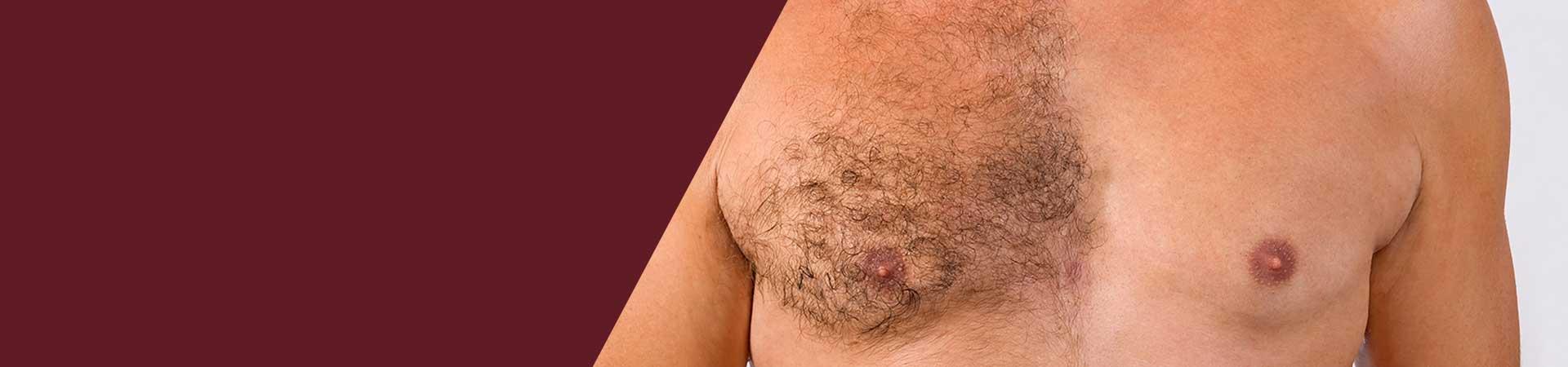 Body Hair Implantation
