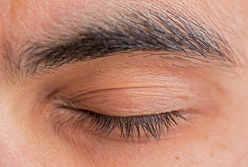 hair-transplantation-bergmann-kord-hair-clinics-eyebrow-implantation-text-photo-001