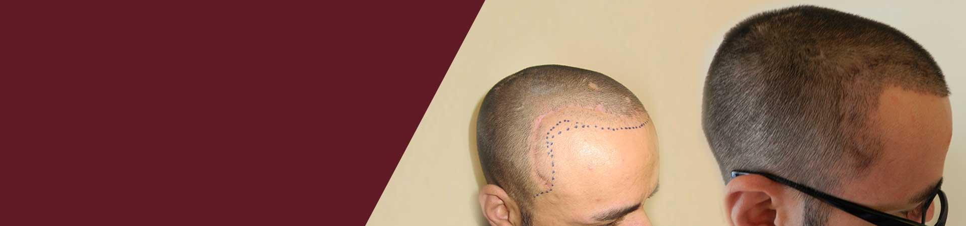 Scar Hair Transplantation