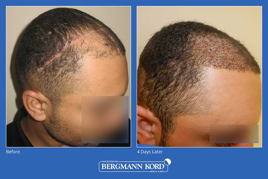 hair-transplantation-bergmann-kord-hair-clinics-scar-hair-restoration-photo-slider-01-009