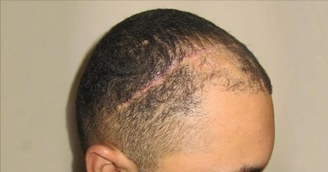 hair-transplantation-bergmann-kord-hair-clinics-scar-hair-restoration-text-photo-001