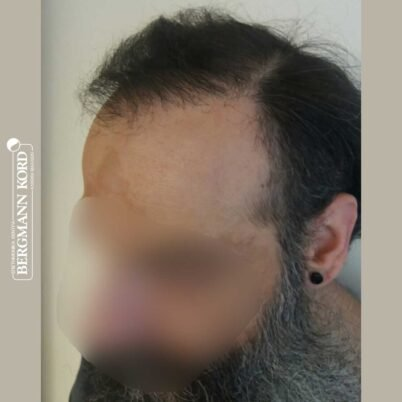 hair-transplantation-bergmann-kord-results-57005TL-6months-left-001