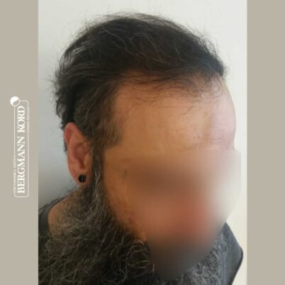 hair-transplantation-bergmann-kord-results-57005TL-6months-right-001