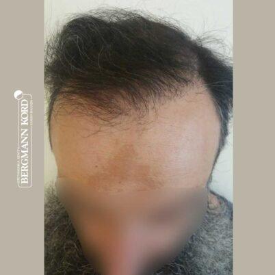 hair-transplantation-bergmann-kord-results-57005TL-6months-top-001
