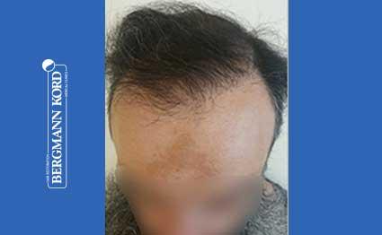 hair-transplantation-bergmann-kord-results-57005TL-after-001