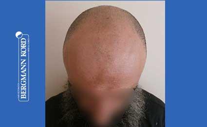 hair-transplantation-bergmann-kord-results-57005TL-before-001