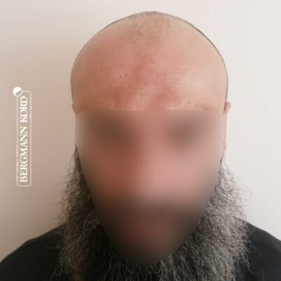 hair-transplantation-bergmann-kord-results-57005TL-before-front-001