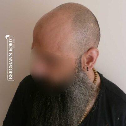 hair-transplantation-bergmann-kord-results-57005TL-before-left-001