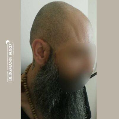hair-transplantation-bergmann-kord-results-57005TL-before-right-001