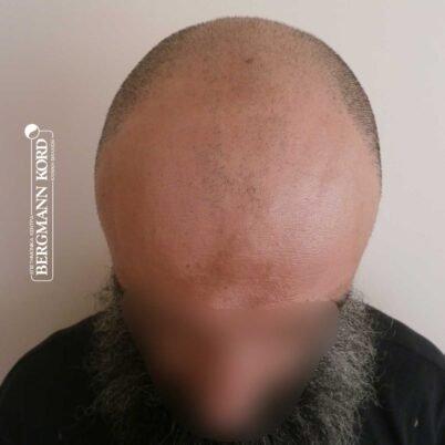 hair-transplantation-bergmann-kord-results-57005TL-before-top-001