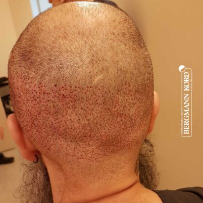 hair-transplantation-bergmann-kord-results-57005TL-this-day-donor-area-001