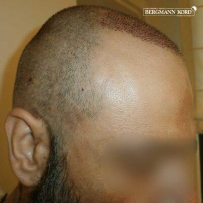 hair-transplantation-bergmann-kord-results-57005TL-this-day-right-001