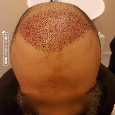 hair-transplantation-bergmann-kord-results-57005TL-this-day-top-001