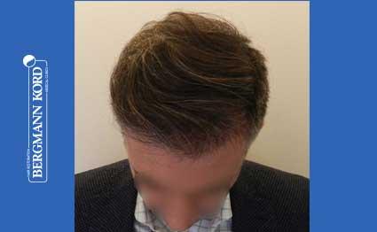 hair-transplantation-bergmann-kord-results-FUE-41001TL-after-001