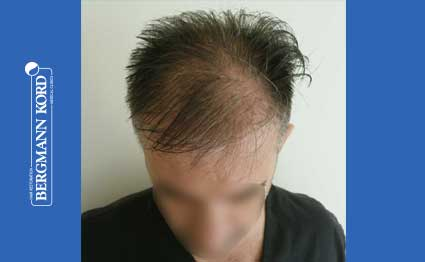 hair-transplantation-bergmann-kord-results-FUE-41001TL-before-001